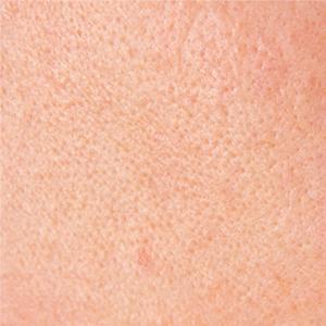 Gros plan des pores