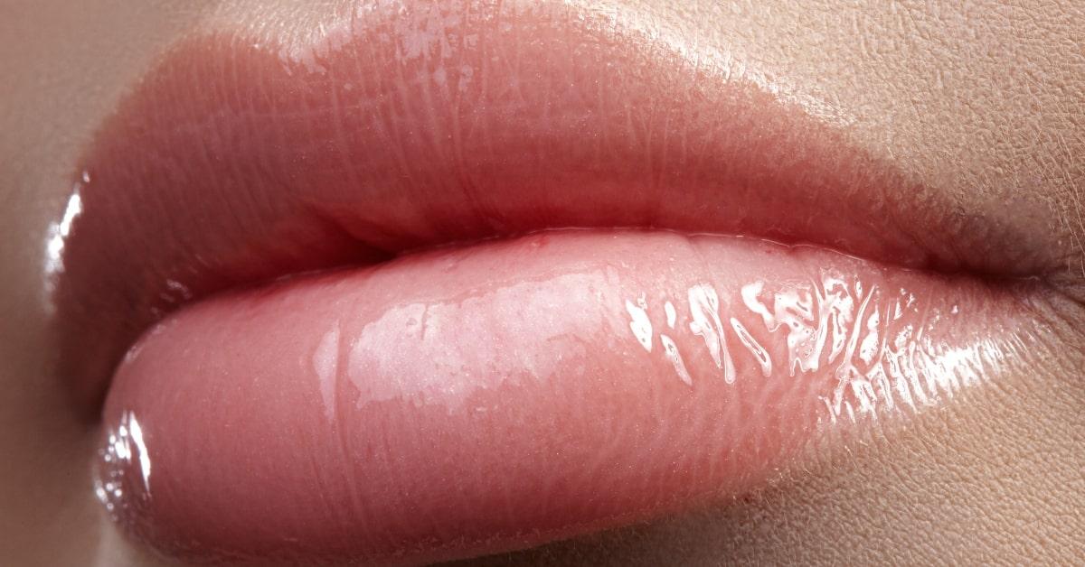 comment fonctionnent les produits de comblement cutané - lèvres