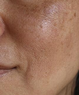 combattre l'hyperpigmentation cutanée estivale et le pigment cutané irrégulier
