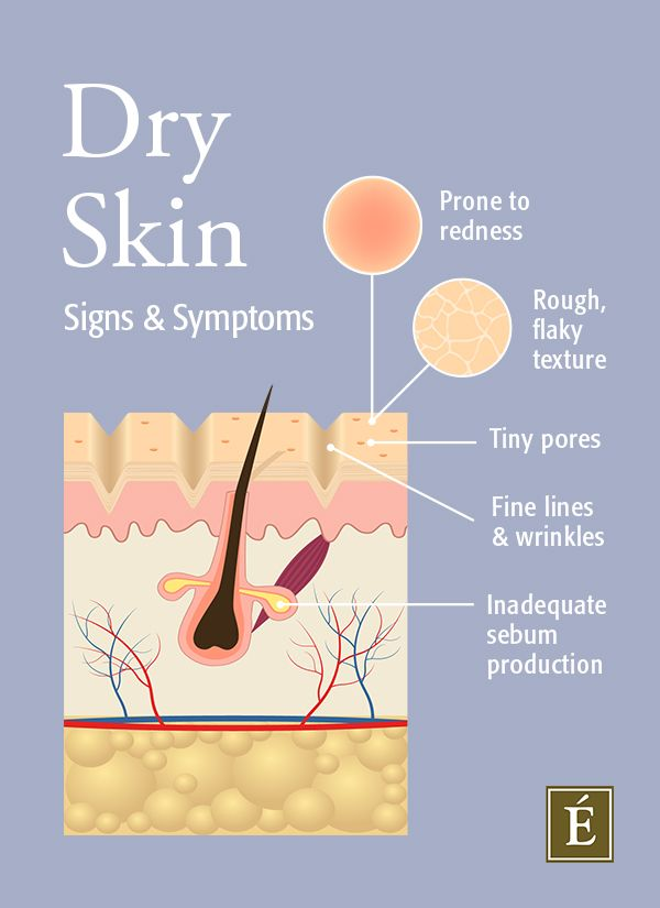 dry skin cross section