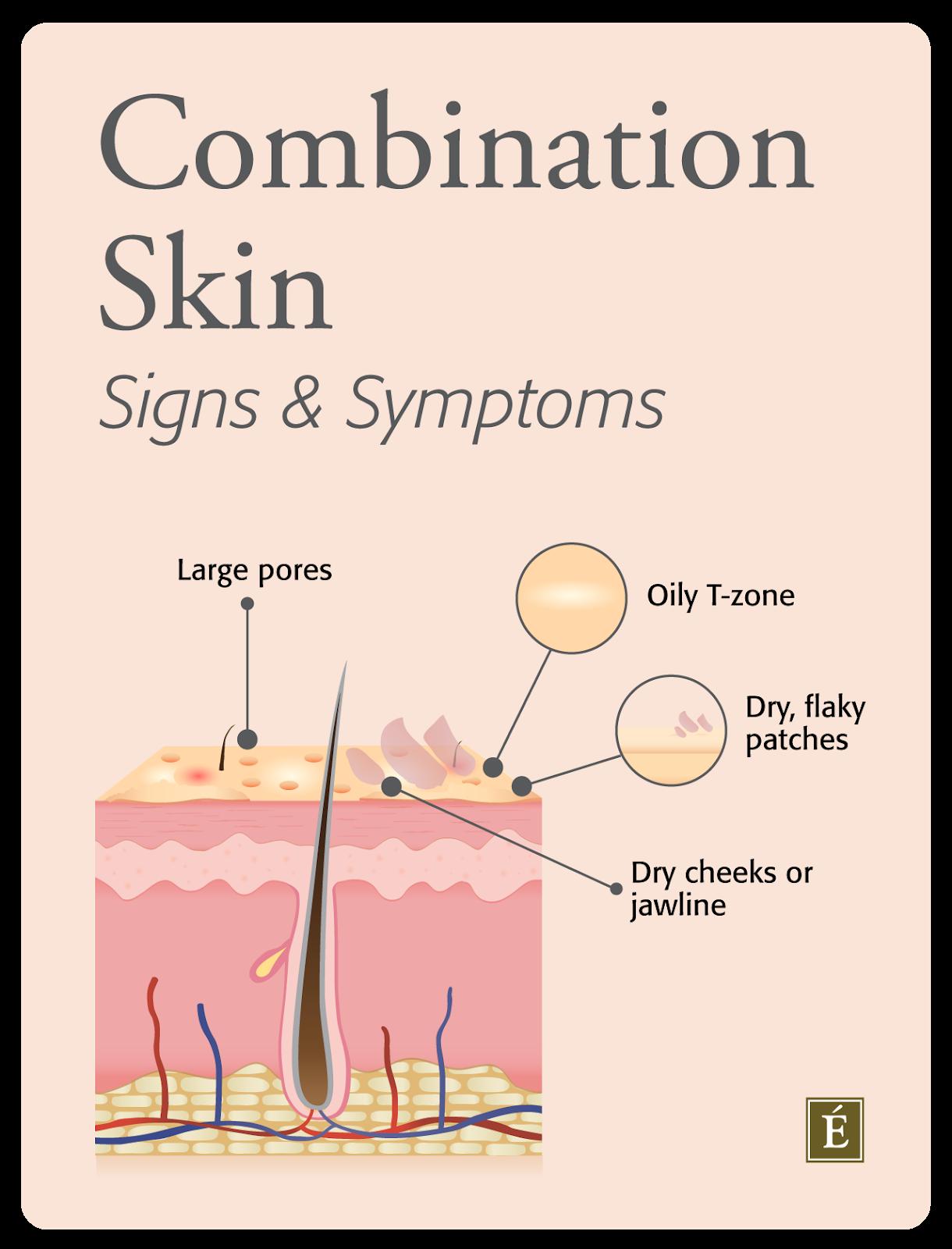 Signes et symptômes de la peau mixte