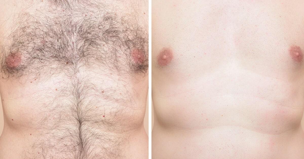 épilation au laser masculin avant et après