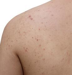 traitement contre l'acné du dos et du corps approuvé par les dermatologues