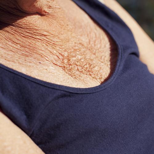 vieille femme avec des rides de la poitrine
