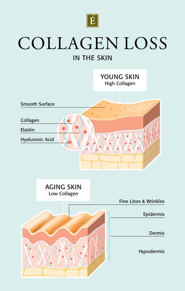 Perte de collagène dans l'infographie de la peau