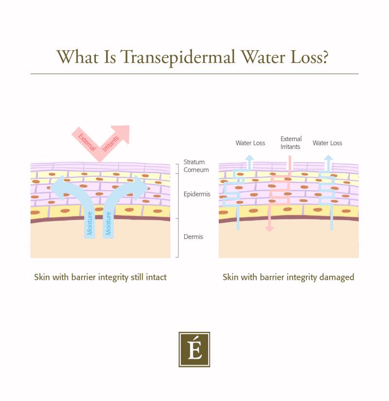 Infographie de la perte d'eau transépidermique